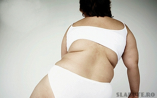obezitatea Obezitatea