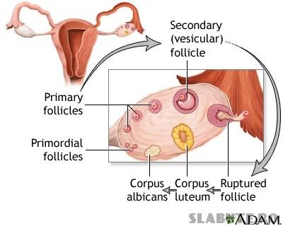23231 Sindromul ovarelor polichistice afecteaza aproximativ 5 10% dintre femei